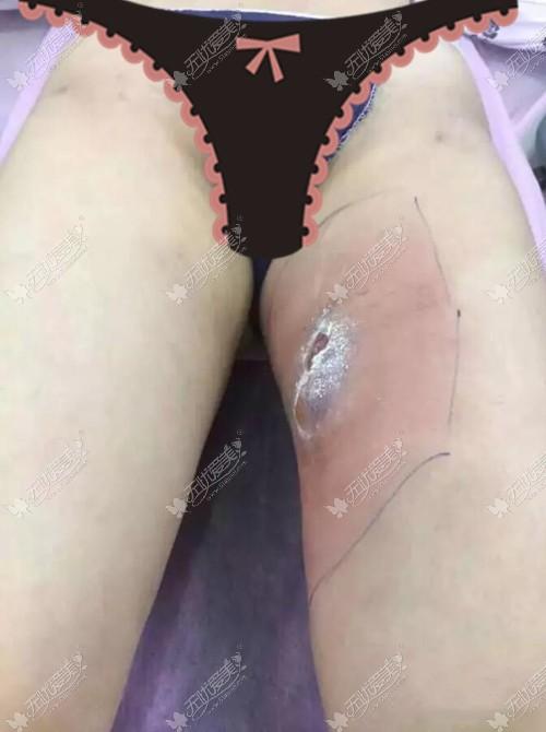 大腿吸脂失败修复