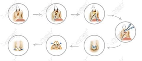隆鼻手术过程