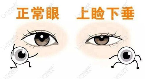 眼睑下垂的表现