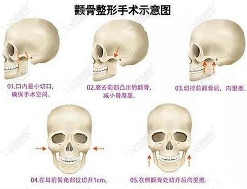 削骨手术量很重要