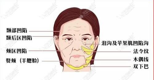 面部有下垂的不适合做颧骨手术