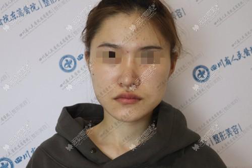 下颌角手术前