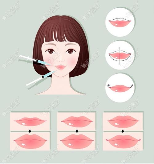 玻尿酸丰唇的原理