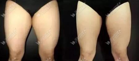 武汉艺星大腿冷冻溶脂效果