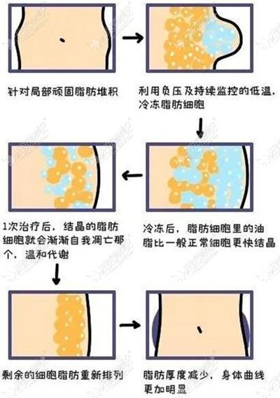 冷冻溶脂过程原理