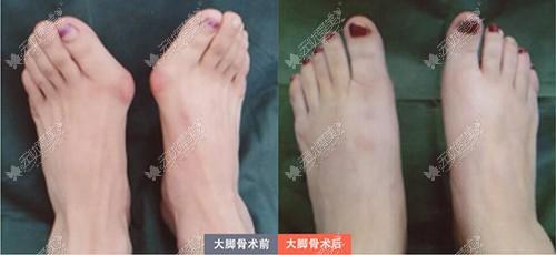 北京煤医大脚骨手术前后对比