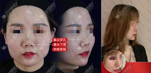 鼻头挛缩失败修复案例