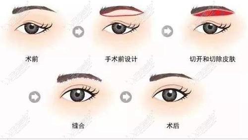 切眉手术改善较重的眼皮松弛