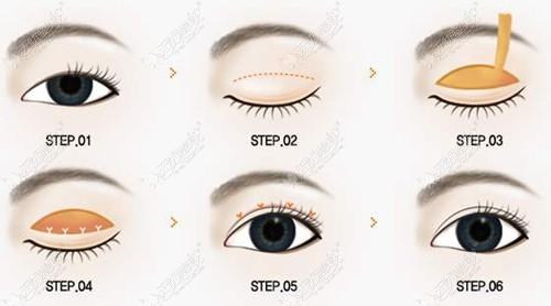 全切双眼皮改善轻微眼皮松弛