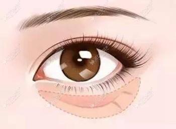注射胶原蛋白填充泪沟有硬结