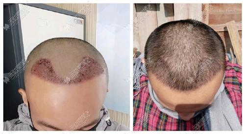 FUE植发前后效果对比