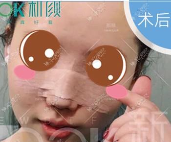 在珠海新颜做肋软骨隆鼻手术当天