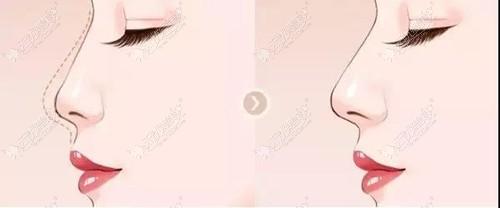 膨体半肋骨隆鼻术后效果