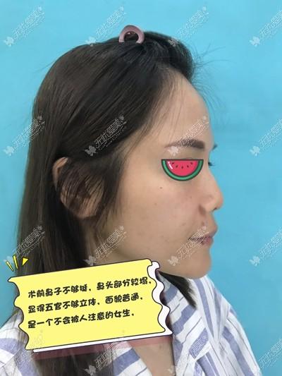 在南京鼻祖SMAS仿生鼻术前