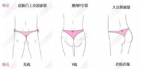 臀部不好看的多种类型