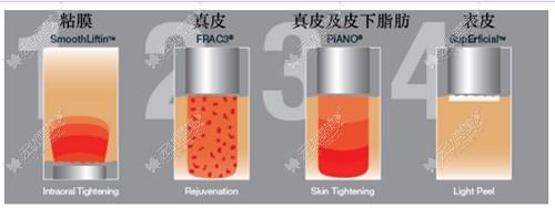 Fotona 4D pro的四种模式