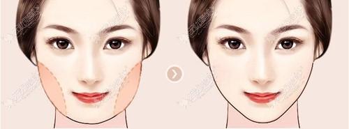 面部吸脂手术的效果