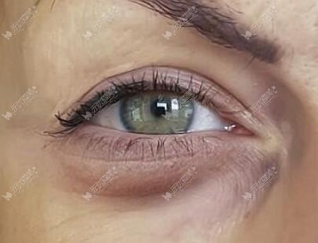 热效溶脂去眼袋的后遗症