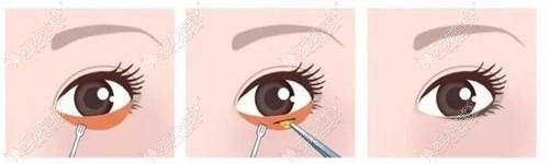 内切去眼袋手术过程