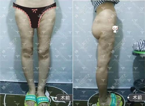 大腿吸脂失败造成凹凸不平