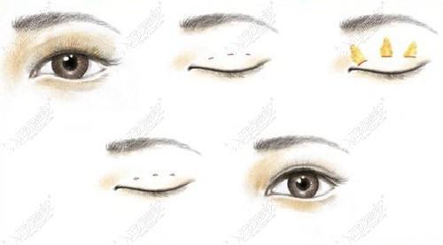 刘晓吉双眼皮手术优势