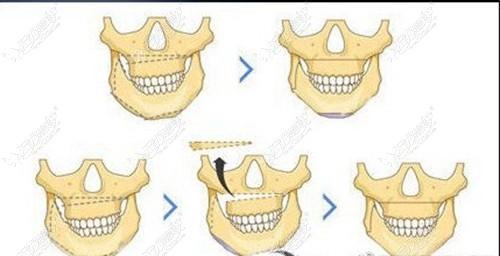 正颌手术改善下颌骨不对称