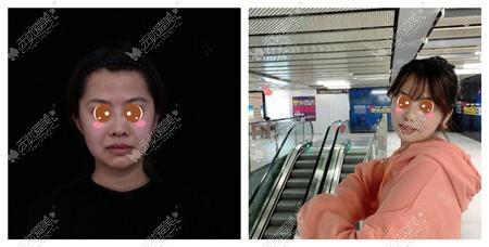 北京京韩面部吸脂案例