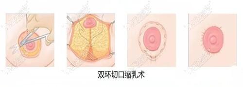 乳房悬吊双环法手术过程