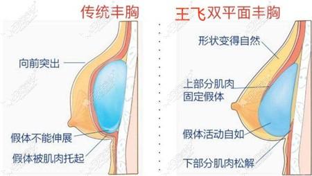 保定珍润隆胸技术优势