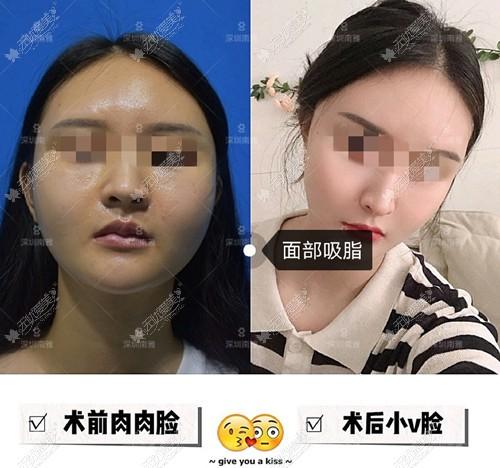 深圳南雅创可贴面部吸脂案例
