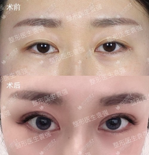 天津联合丽格双眼皮案例
