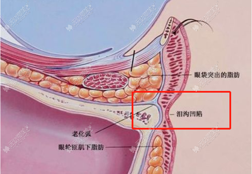 嗨体熊猫针的注射部位