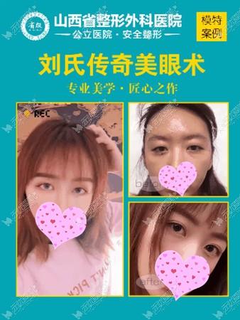 刘晋元双眼皮案例