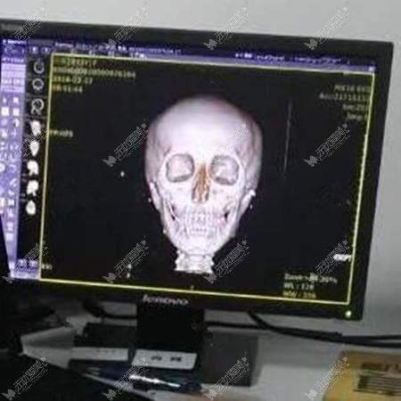 在四川友谊做磨骨手术前CT
