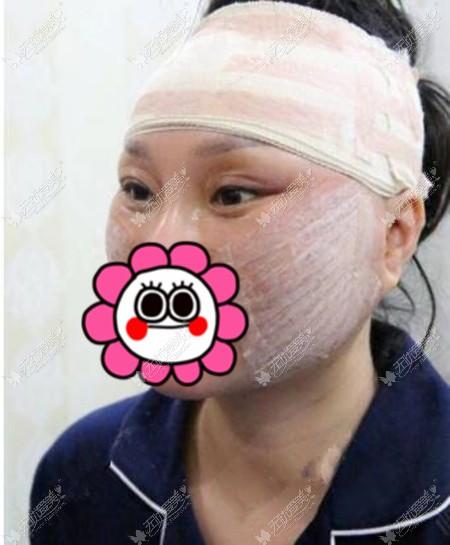 拉皮手术后即刻的效果