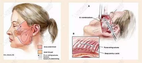 筋膜拉皮手术的原理