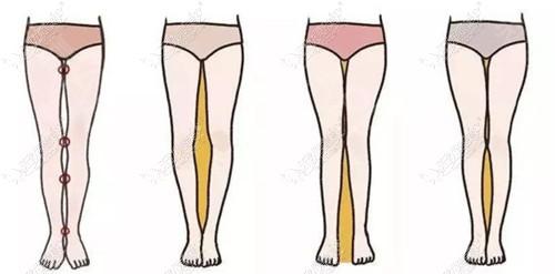 大腿肥胖会造成的影响