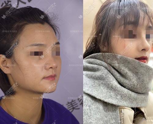 李萍鼻综合前后对比案例