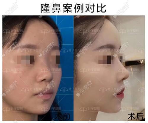 包头叶子肋软骨隆鼻案例