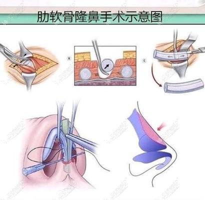 肋软骨隆鼻过程