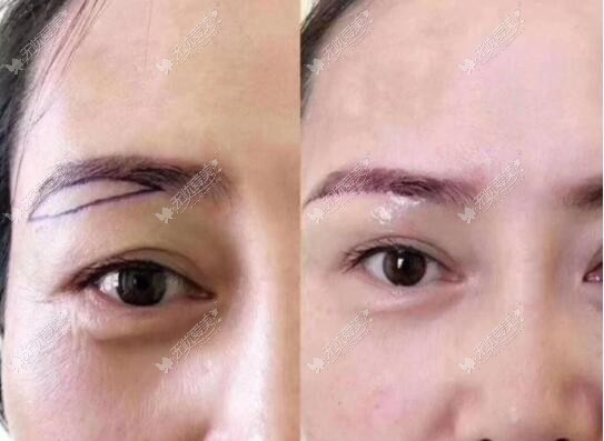眼尾提升手术前后效果对比照片
