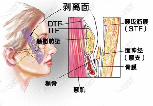 筋膜层提升凹陷太阳穴