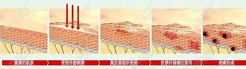 大腿吸脂后疤痕增生的过程