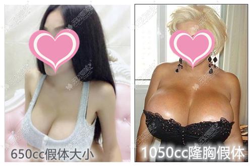 650cc和1050cc隆胸假体对比