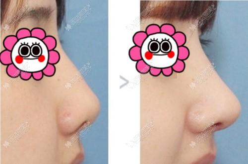 李开征的隆鼻手术风格