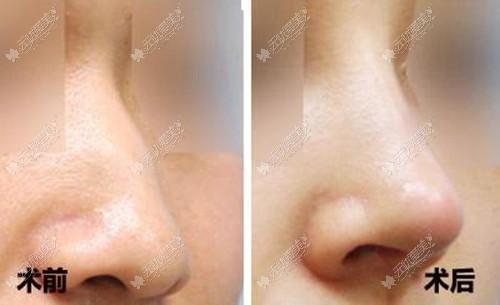 滕双燕的肋骨隆鼻案例