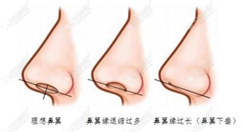 鼻翼缘退缩打玻尿酸能改善吗