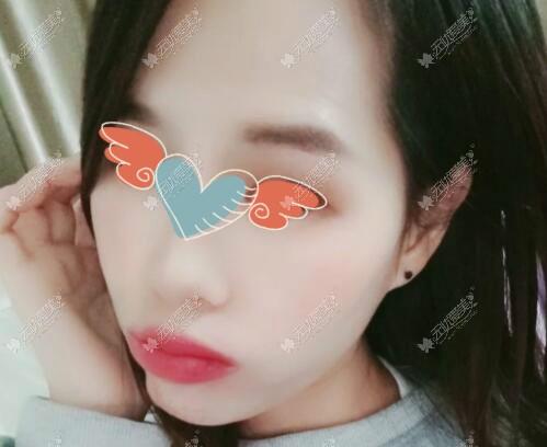 做m唇嘴凸失败照片