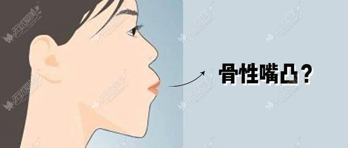 骨性嘴凸图片