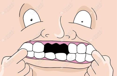 糖尿病人牙掉了怎么样